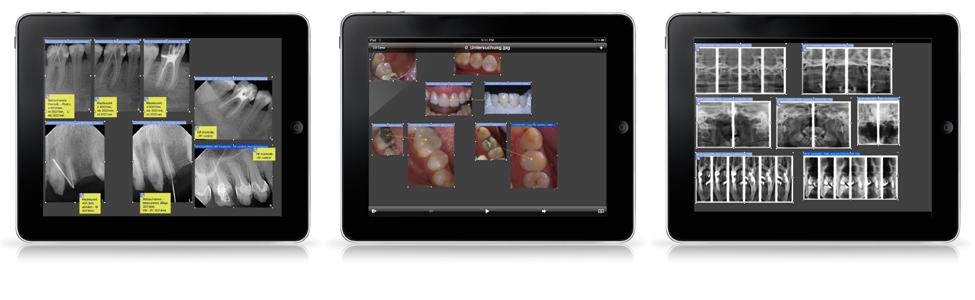 Das Betrachten von SIDEXIS Bildern und kompletten Untersuchungen auf dem gestochen scharfen 9.7 Zoll LED, Multi Touch, 1024 mal 768 Pixel Display ist atemberaubend. Das SidexisMobilePlugin unterstützt die volle Bildschirmauflösung von Apple's neuem iPad