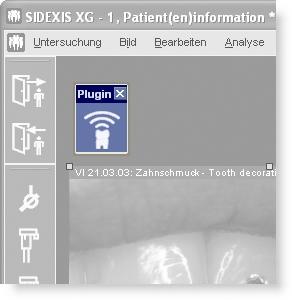 Das SidexisMobilePlugin für iPhone und iPod touch ist über einen einzigen Toolbarbutton innerhalb SIDEXIS XG erreichbar.