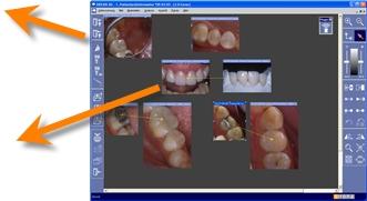 Das SidexisMobilePlugin überträgt, zusätzlich zu den markierten Bildobjekten, vollautomatisch eine Ansicht der in SIDEXIS XG sichtbaren Untersuchung. Hierbei werden alle Anmerkungen, Pfeile und sonstigen, grafischen Markierungen berücksichtigt und ste