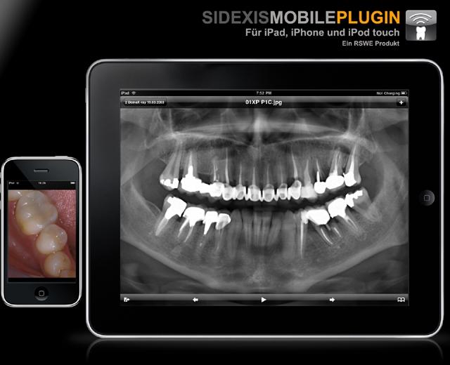 RSWE stellt ein Update des SidexisMobilePlugins mit nativer Unterstützung der neuen Gerätefunktionen vor. Das brilliante iPad® Display mit LED Hintergrundbeleuchtung eröffnet neue Wege in der Patientenkommunikation.